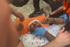 الهلال الأحمر: مئات الإصابات خلال اقتحام شرطة الاحتلال للمسجد الأقصى