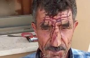 مستوطنون يعتدون على راعي أغنام ويصيبونه بجراح جنوب غرب جنين