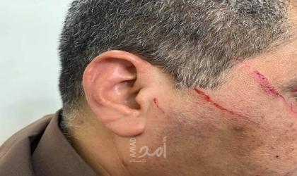 """الطبيب """"عوض"""" يكشف لـ""""أمد"""" حيثيات اعتداء مواطن على أحد الأطباء في مستشفى الشفاء بغزة"""